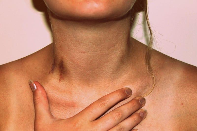 love bite hickey